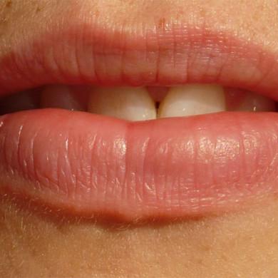 Strašák jménem zubní kaz